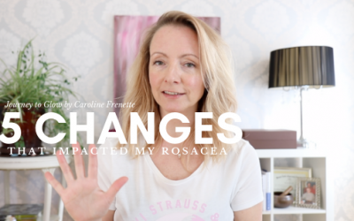 5 Big Changes I Made To Heal Rosacea Naturally & Holistically 